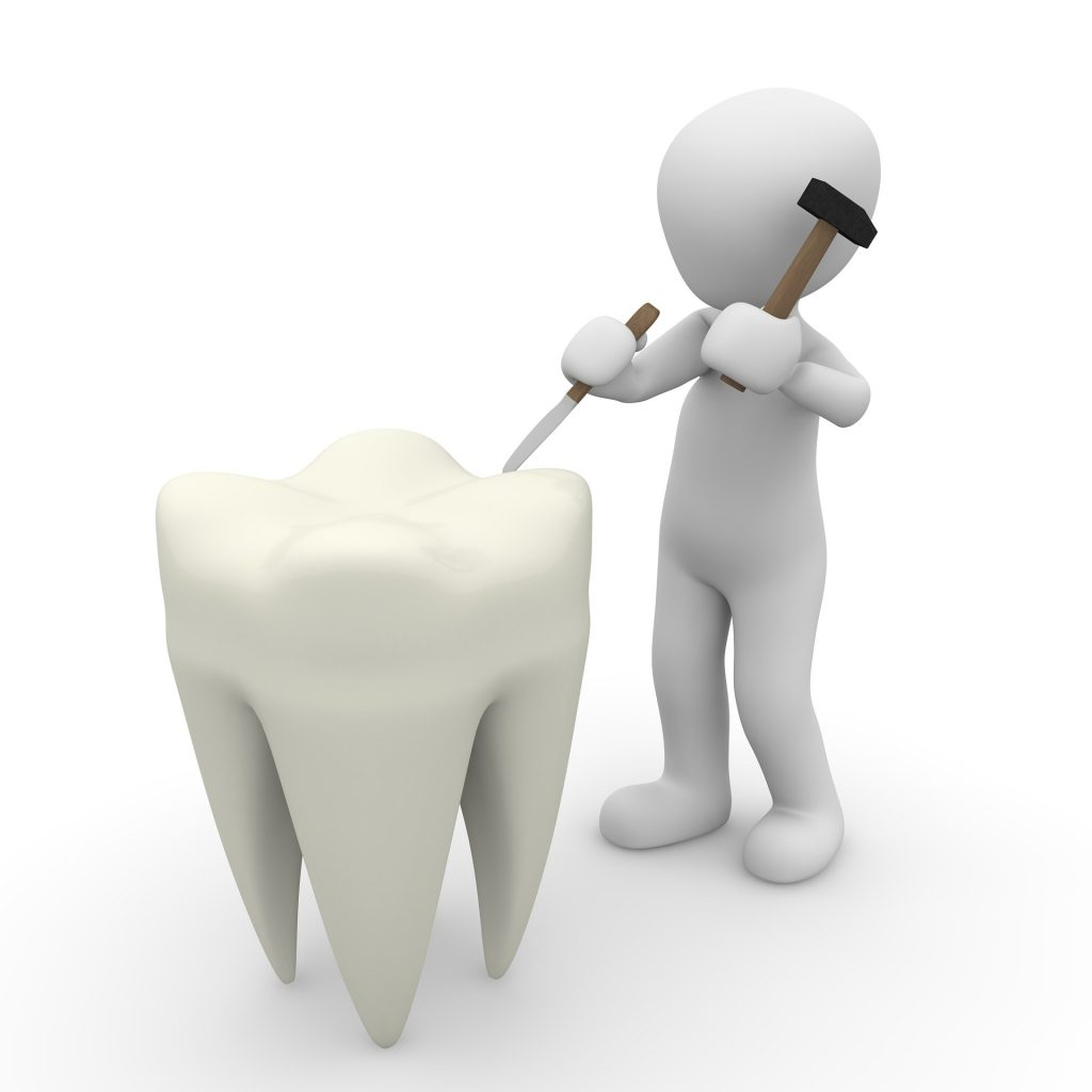 tooth - Your First Appointment with a Divorce Attorney Should Not Be Like Going to the Dentist (no offense to dentists)